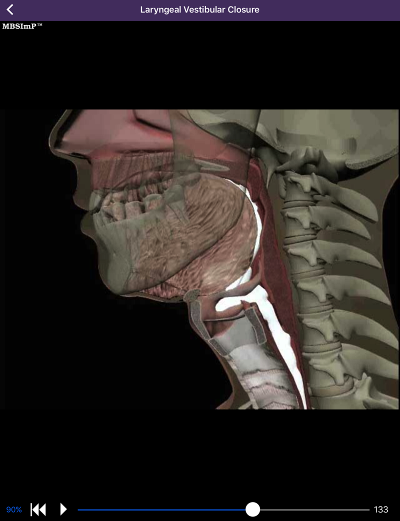 dysphagia app swallow physiology animations