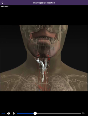 Animation of impairment of pharyngeal contraction.